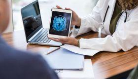 Neurologist reviews patient's brain MRI scan
